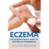 Eczema: My Eczema Cure & How to Get Rid of Dyshidrosis  - Fast