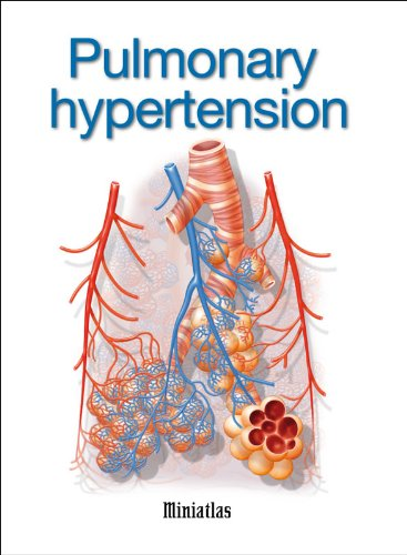 Best Hypertension Pulmonary Viagra
