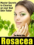 "Rosacea ""Master Secrets to Clearing up your Bad Skin Today!"""