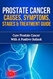 Prostate cancer Causes, Symptoms, Stages and Treatment Guide: Cure Prostate cancer with a Positive Outlook