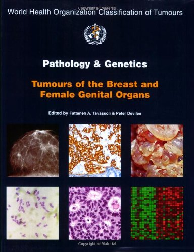 Pathology And Genetics Of Tumours Of The Breast And Female Genital Organs (Iarc Who Classification Of Tumours)