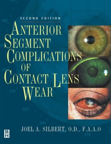 Anterior Segment Complications of Contact Lens Wear, 2e