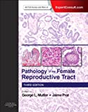 Pathology of the Female Reproductive Tract: Expert Consult: Online and Print, 3e