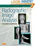 Radiographic Image Analysis, 4e