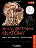 img - for Human Sectional Anatomy: Atlas of Body Sections, CT and MRI Images, Fourth Edition book / textbook / text book