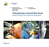 img - for Osteotomies around the Knee: Indications-Planning-Surgical Techniques using Plate Fixators book / textbook / text book