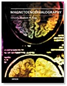 Magnetoencephalography