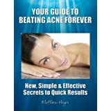 Your Guide to Beating Acne Forever - New, Simple & Effective Secrets to Quick Results