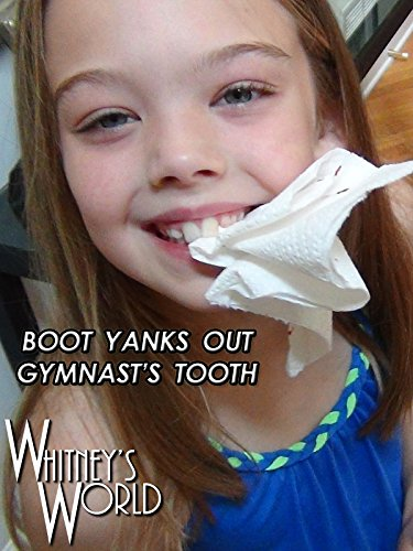 Boot Yanks Out Gymnast's Tooth