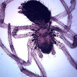 Spider, w.m., Microscope Slide