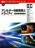 アレルギー性眼疾患とドライアイ—重症度別治療法 (眼科インストラクションコース)