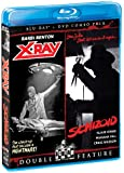 X-Ray / Schizoid (BluRay/DVD Combo)