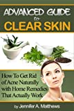 51TO2F9YKlL. SL160  Advanced Guide to Clear Skin: How To Get Rid of Acne Naturally with Home Remedies That Actually Work