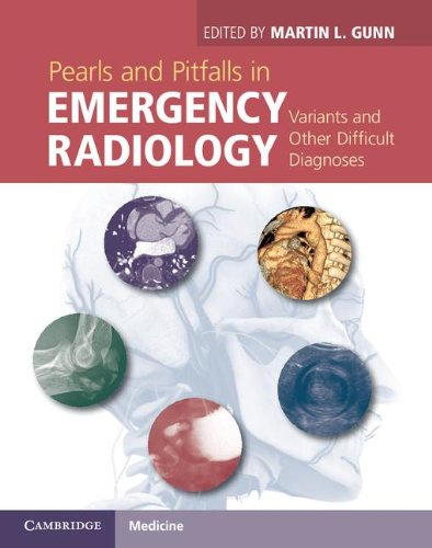 Pearls And Pitfalls In Emergency Radiology: Variants And Other Difficult Diagnoses