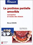 La prothse partielle amovible : Conception et tracs des chssis
