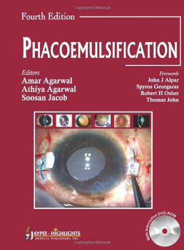 Phacoemulisification front-62587