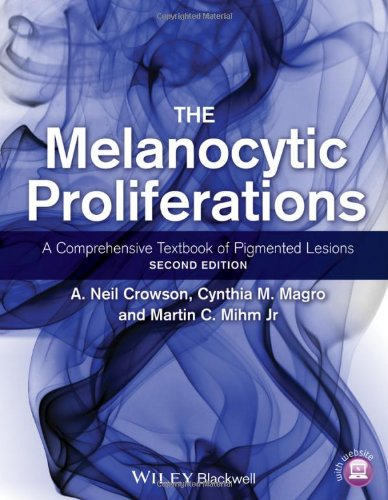 The Melanocytic Proliferations: A Comprehensive Textbook Of Pigmented Lesions