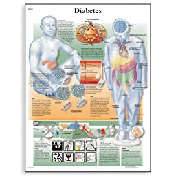 3B Scientific VR1441L Glossy Laminated Paper Diabetes Mellitus Anatomical Chart, Poster Size 20\