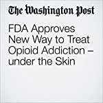 FDA Approves New Way to Treat Opioid Addiction – under the Skin | Laurie McGinley