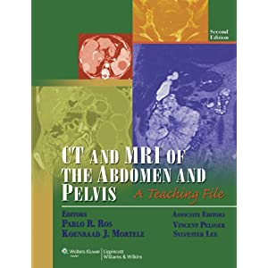 CT and MRI of the Abdomen and Pelvis: A Teaching File (LWW Teaching File Series), 2e