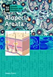 img - for Alopecia Areata (Genetic Diseases) book / textbook / text book
