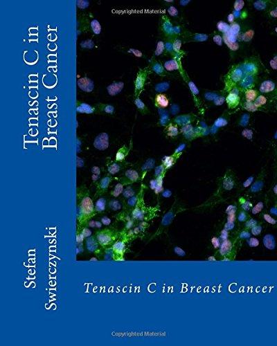Tenascin C in Breast Cancer
