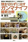 脳腫瘍、脳動静脈奇形から三叉神経痛まで 頭を切らずに治すガンマナイフ最新治療 (健康ライブラリースペシャル)
