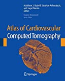 img - for Atlas of Cardiovascular Computed Tomography book / textbook / text book