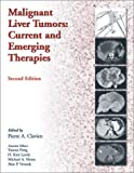 Malignant Liver Tumors:  Current And Emerging Therapies (0763718572) by Clavien, Pierre