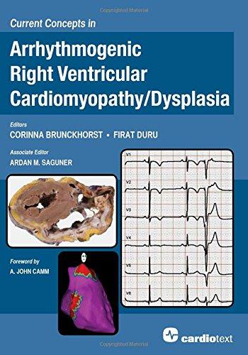 Current Concepts In Arrhythmogenic Right Ventricular Cardiomyopathy / Dysplasia