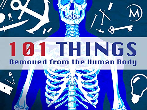 101 Things Removed from the Human Body on Amazon Prime Video UK