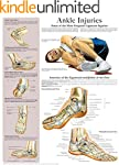 Ankle Injuries e-chart: Quick referen...