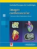 Jose Luis Zamorano Imagen Cardiovascular / Cardiovascular imaging