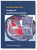 Radiation-induced carotid artery stenosis.(HEAD AND NECK CLINIC): An article from: Ear, Nose and Throat Journal Sofia Avitia, Jason Hamilton and Ryan F. Osborne
