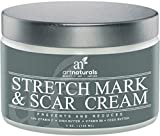 Art Naturals Stretch Mark & Scar Removal Cream 4 Oz- Best Body Moisturizer to Remove, Decrease & Prevent New / Old Stretch Marks & Scars - Made in USA with Organic Ingredients - Use After Pregnancy