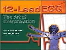 12 lead ecg the art of interpretation download
