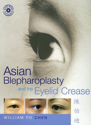Asian Blepharoplasty and the Eyelid Crease  2nd Edition