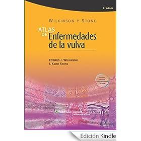 Atlas de enfermedades de la vulva eBook: Edward J