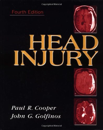head-injury
