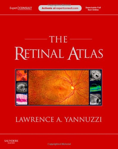 The Retinal Atlas: Expert Consult - Online and Print, 1e