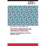 Tumores Epiteliales de Glandulas Salivales