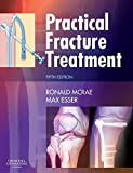 img - for Practical Fracture Treatment, 5e by Ronald McRae FRCS(Eng Glas) FChS(Hon) AIMBI Fellow of the British Orthopaedic Association (2008-04-22) book / textbook / text book