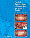 img - for Practical Osseous Surgery in Periodontics and Implant Dentistry by Serge Dibart (2011-11-04) book / textbook / text book
