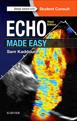 echo-made-easy