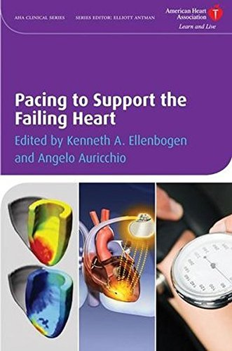 pacing-to-support-the-failing-heart-american-heart-association-clinical-series-2008-12-22
