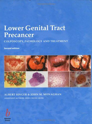 Lower Genital Tract