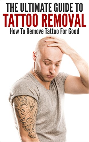 The Ultimate Guide To Tattoo Removal: How To Remove Tattoo For Good (Tattoo, Tattoo Removal, Removing Tattoo, How To Remove Tattoo, Tattoo Clearing)