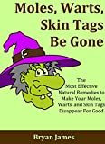51Xi7zUpo4L. SL160  Moles, Warts, Skin Tags Be Gone: The Most Effective Natural Remedies to Make Your Moles, Warts, and Skin Tags Disappear For Good [Mole Removal, Wart Removal, Skin Tag Removal]