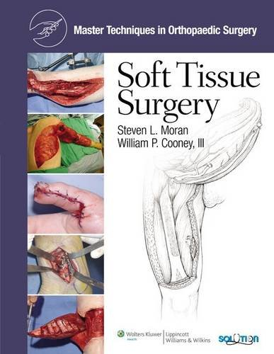 Master Techniques in Orthopaedic Surgery: Soft Tissue Surger