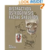 Distraction Osteogenesis of the Facial Skeleton